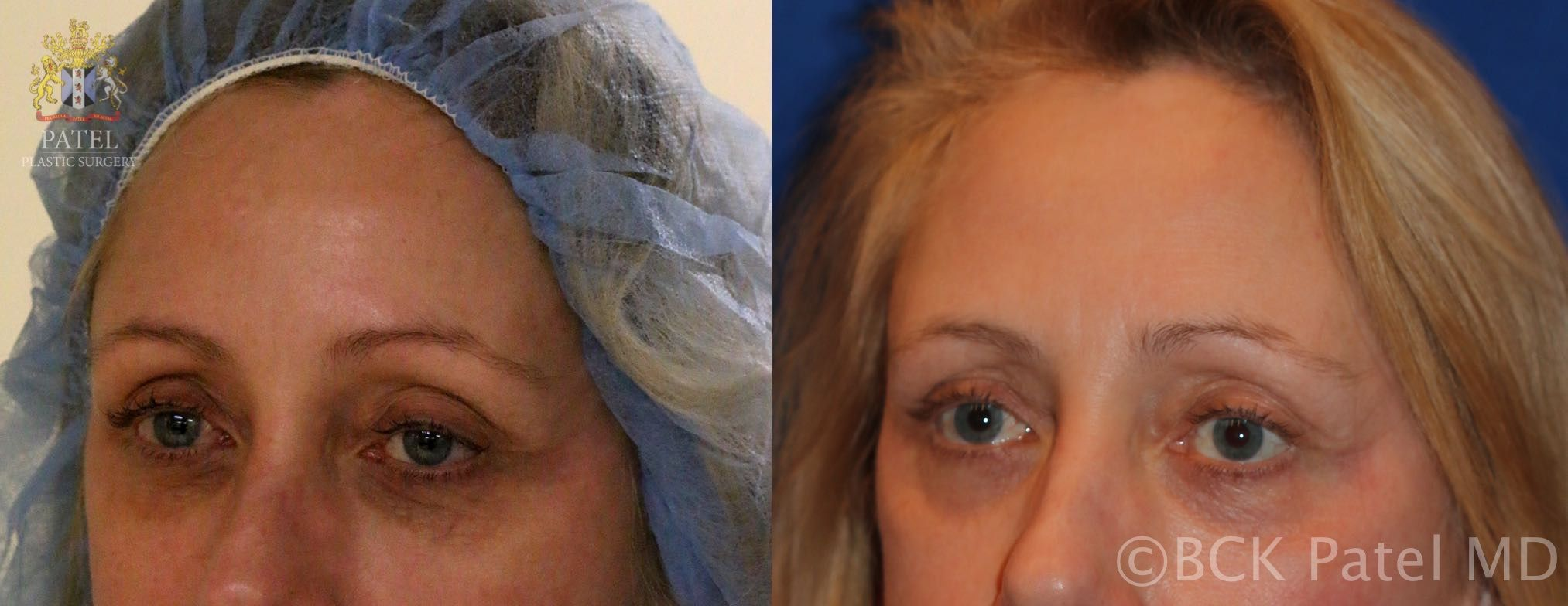 Before and after photos showing a nice improvement in the colour and texture of lower eyelid skin after fractionated CO2 laser. BCK Patel MD, FRCS, Salt Lake City