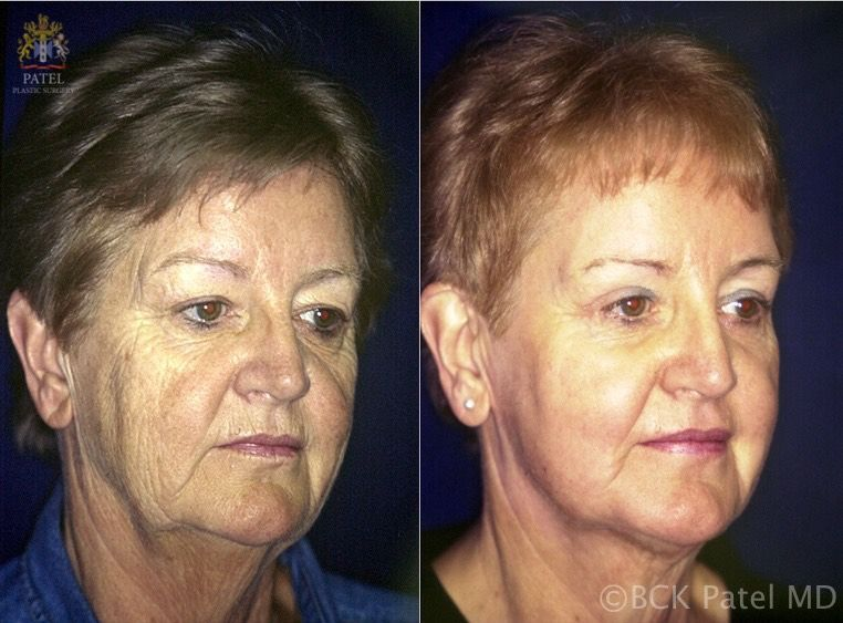 Photos show a nice improvementin the wrinkles and pores after use of the fractionated CO2 laser full face. BCK Patel MD, FRCS, Salt Lake City, Utah, St. George