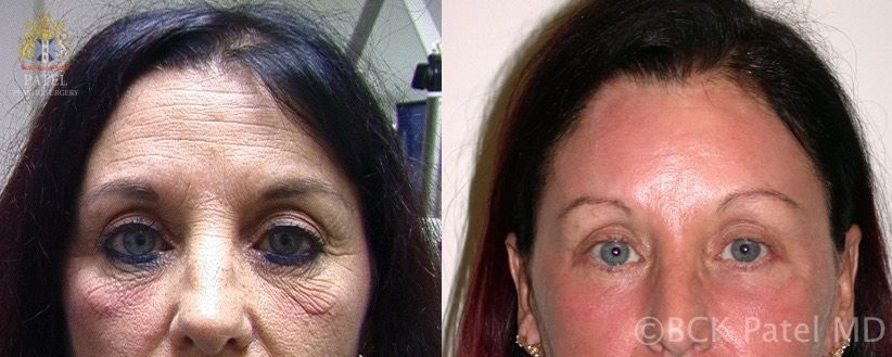 Improvement in forehead wrinkles and pores with the use of the fractionated CO2 laser by Dr. BCK Patel Md, FRCS, London, Salt Lake City, St. George