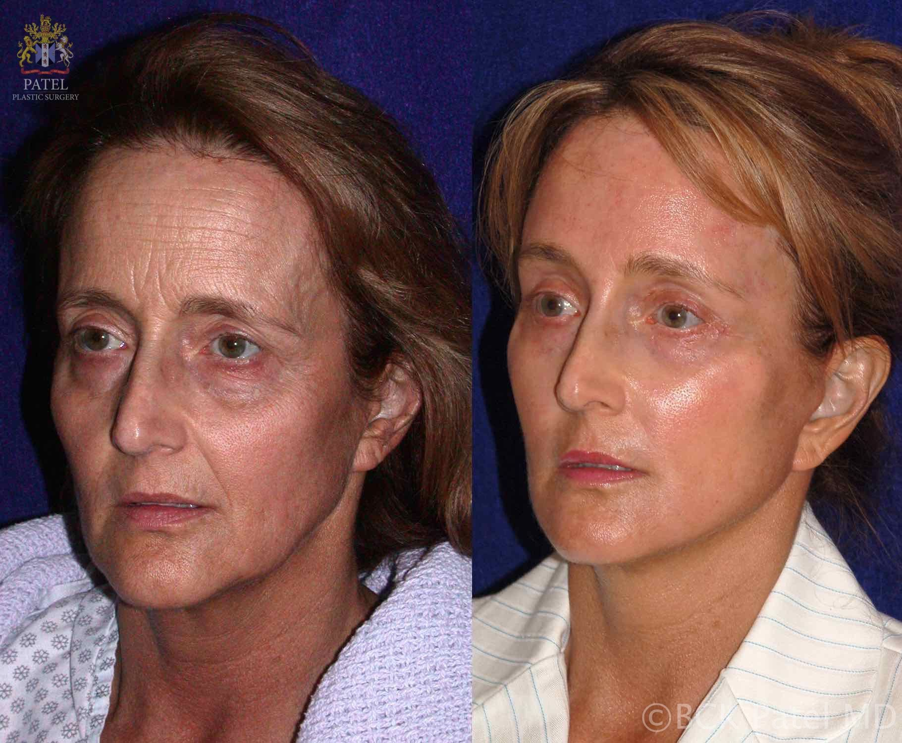 Beautiful improvement in the face skinin terms of wrinkles and lines after using the fractionated CO2 laser. BCK Patel MD, FRCS, London, Salt Lake City St George