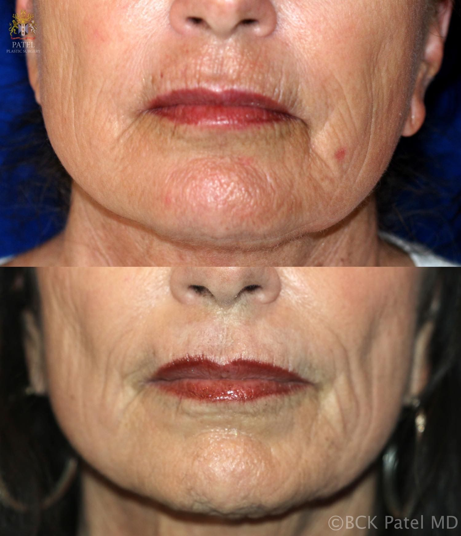Nice results with improvement of lip andmouth smoker's lines with the use of the CO2 laser by Dr. BCK Patel MD, FRCS, Salt Lake City, London, St George