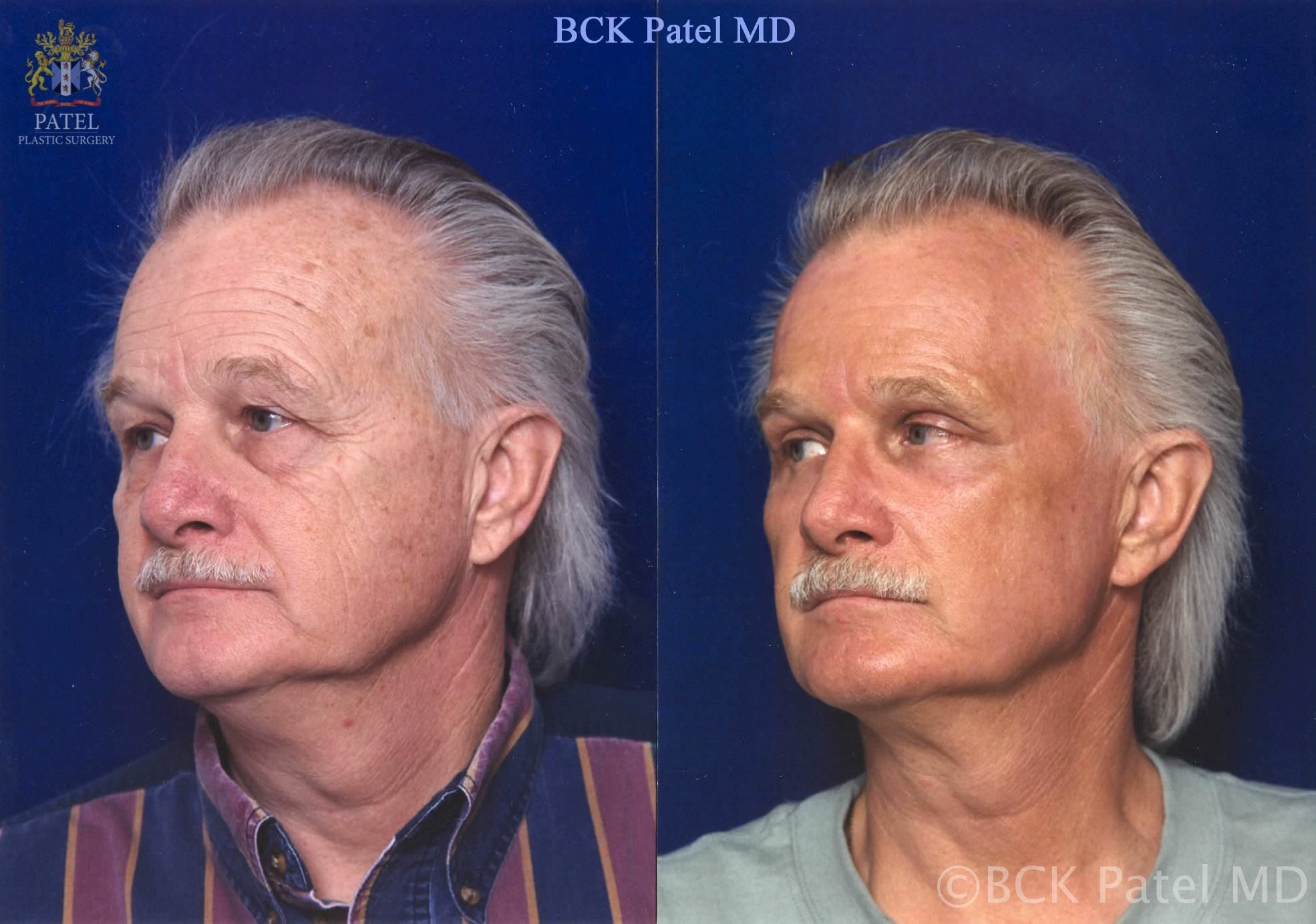 Results of the fractionated CO2 laser to the full face in a man by Dr. BCK patel MD, FRCS, Salt Lake City, St George, London, England