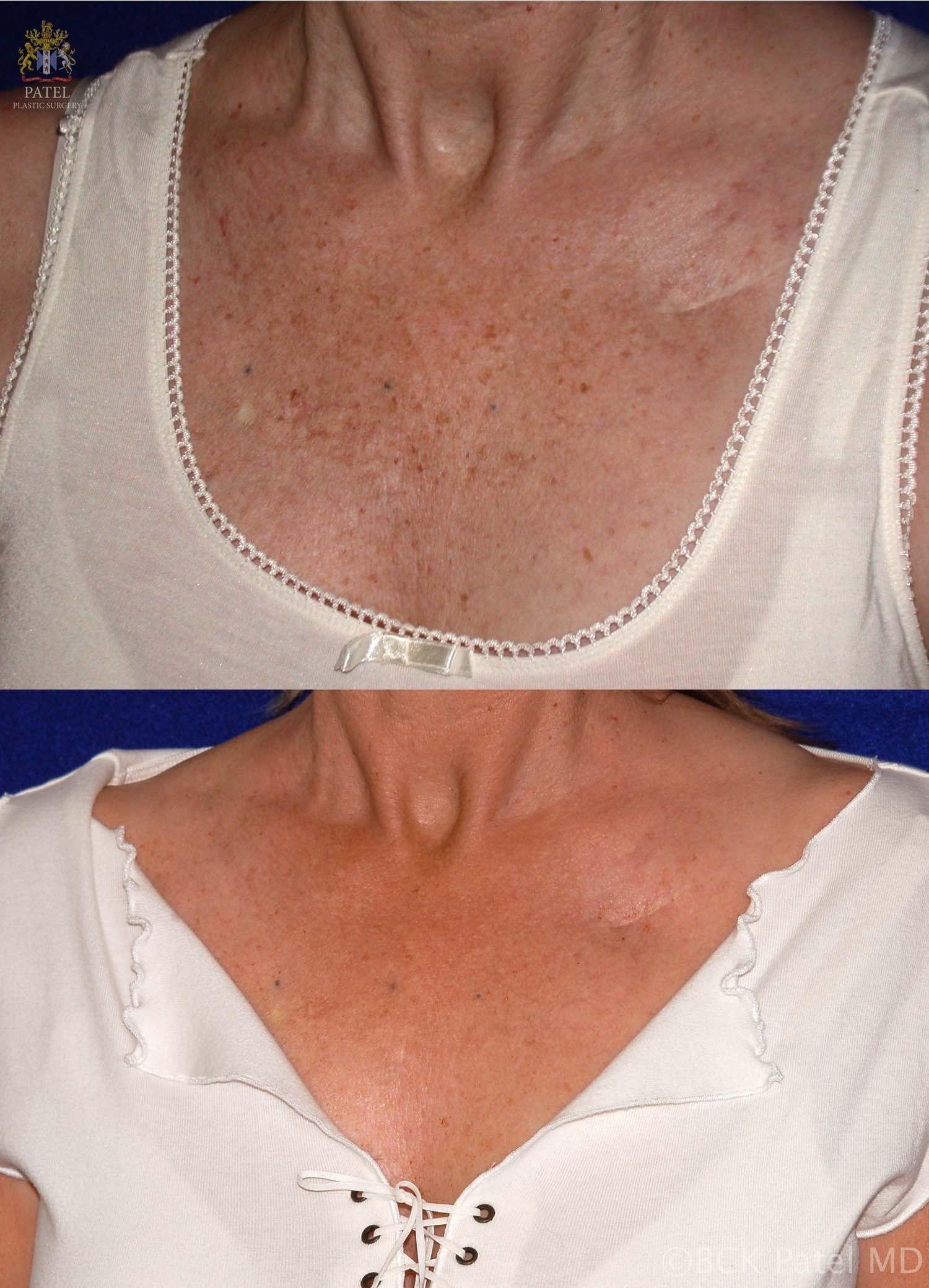 Laser And Ipl Pigmentation Removal Freckles Amp Sun Spots