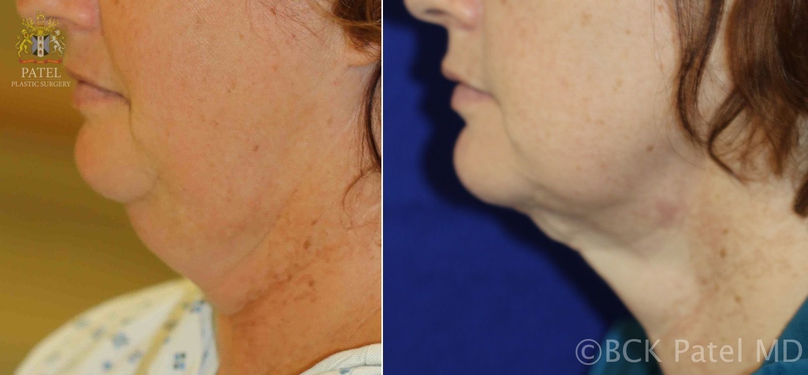 Before and after treatment of the fat neck by Dr. BCK Patel MD, FRCS of Salt Lake City, London, St George