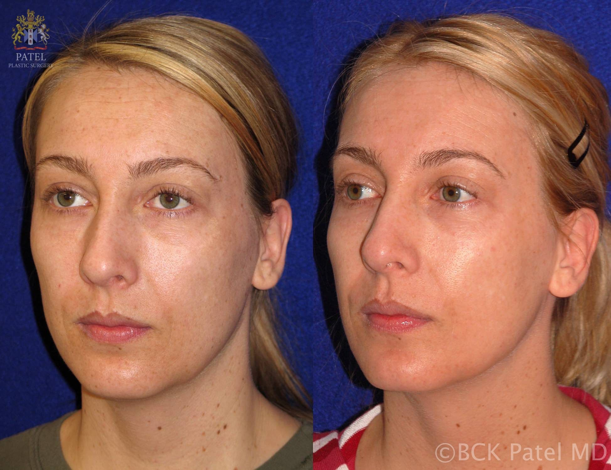 Results fo full face trichloroacetic acid chemical peels by Dr BCK Patel MD, FRCS, Salt Lake City, Utah, St George, London