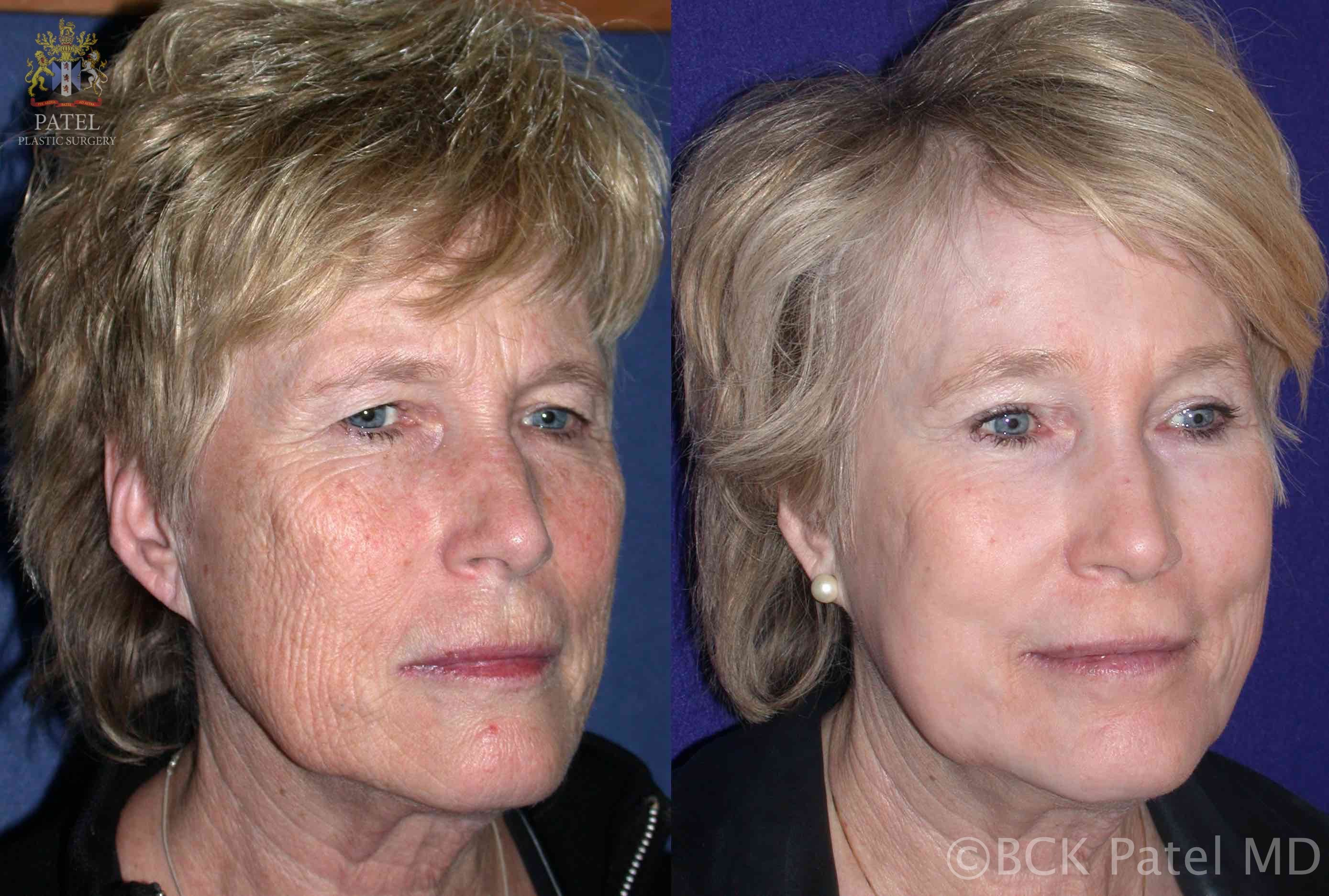 Long-term followup of the full face after fractionated CO2 laser treatment by Dr. BCK Patel MD, FRCS, Salt Lake City, London, St George