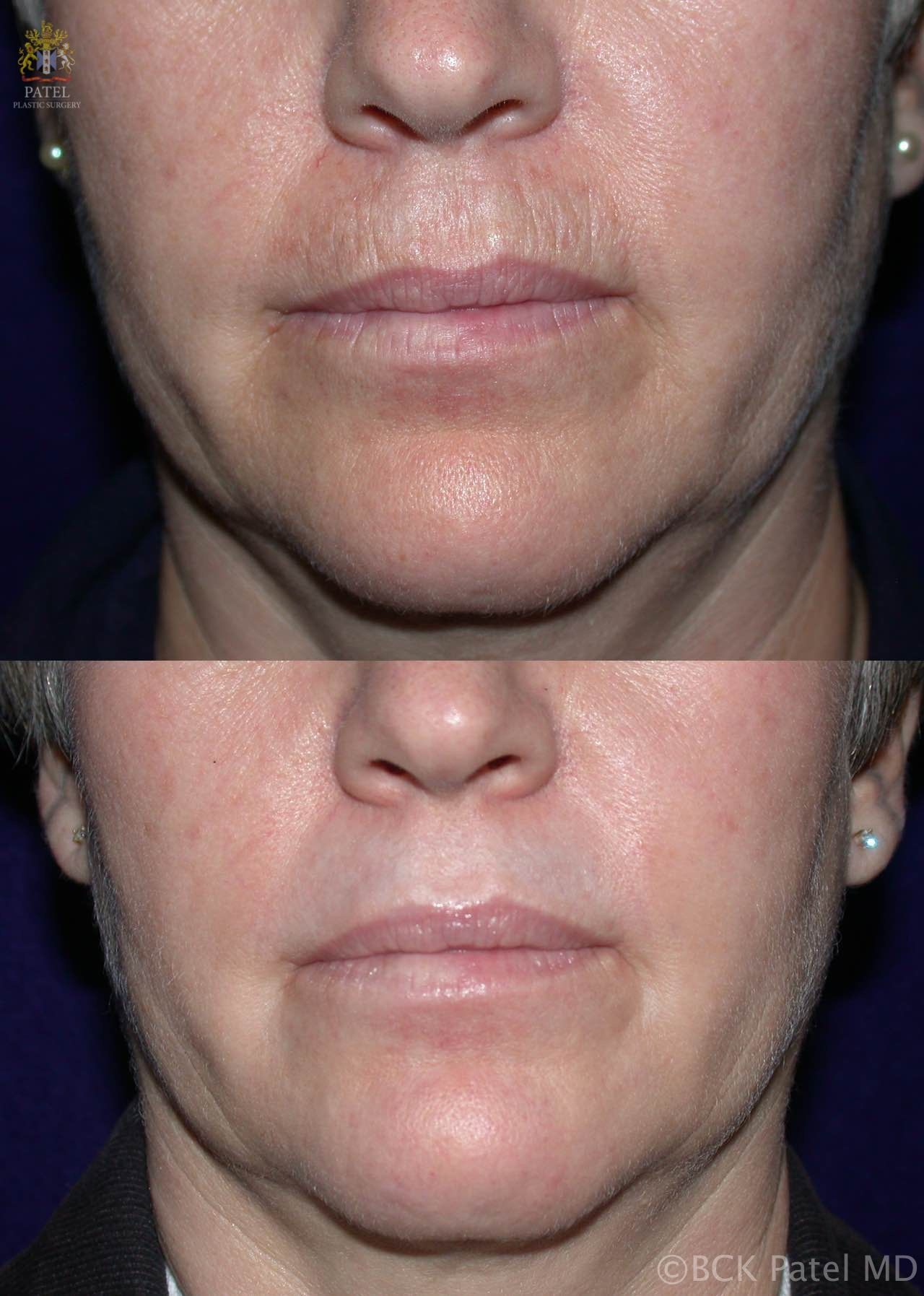 Nice improvement in the smoker's lines around the mouth, marionette lines after CO2 laser by Dr. BCK Patel MD, FRCS, Salt Lake City, London, St George