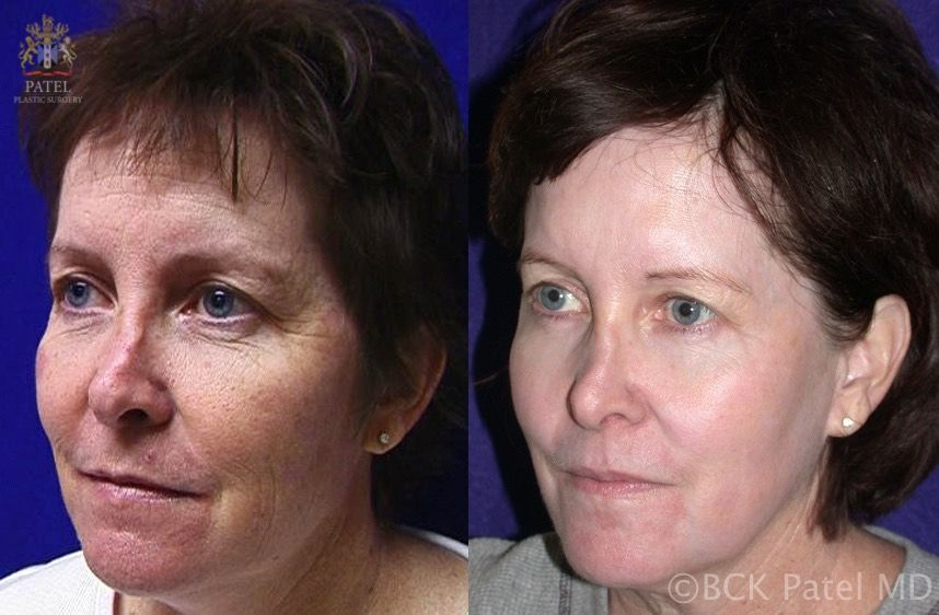 Photos show beautiful result with CO2 laser treatment of the full face by Dr. BCK Patel MD, FRCS, London, Salt Lake City, St. George