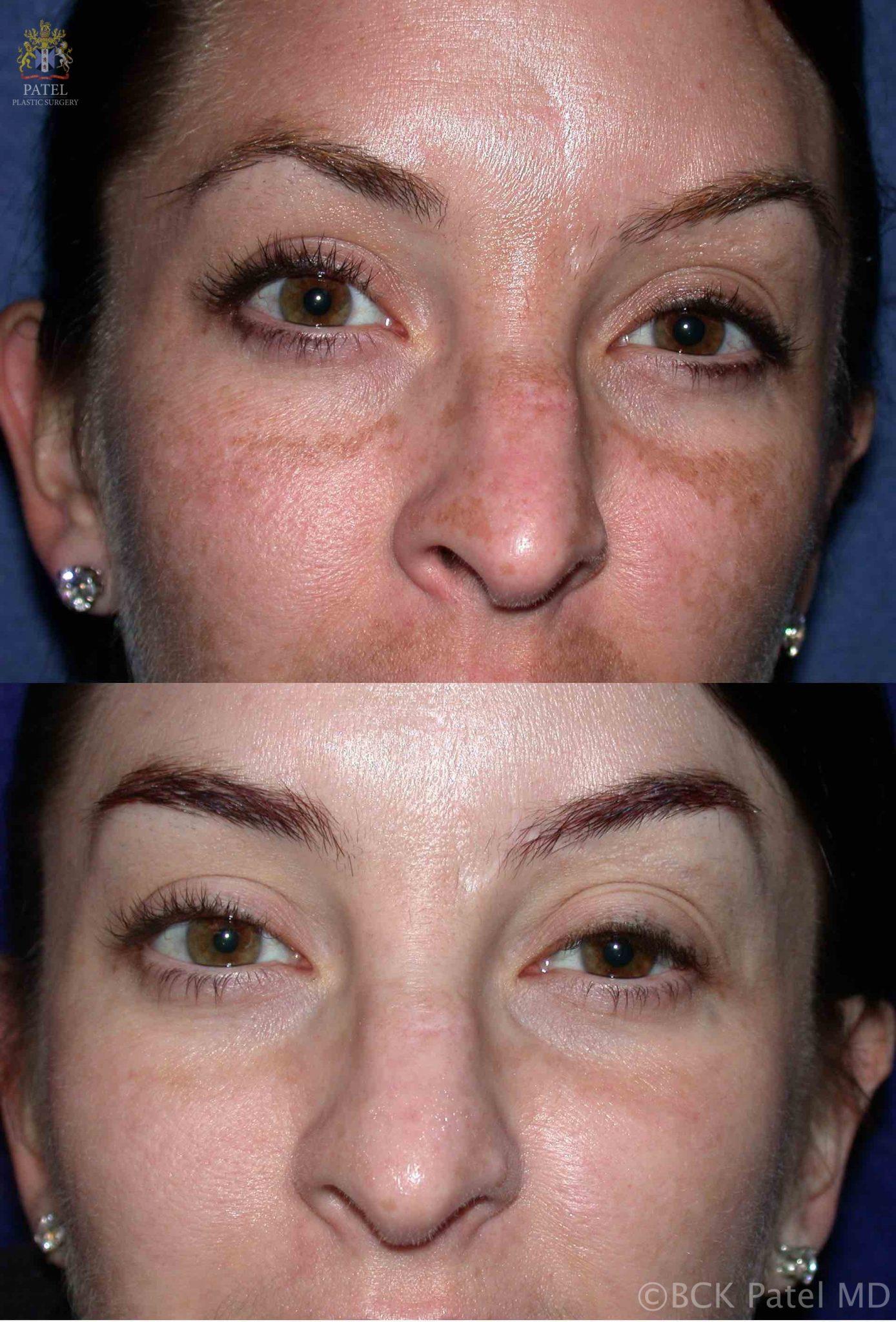 englishsurgeon.com. Chemical peel treatment results for melasma by Dr. BCK Patel MD, FRCS, Salt Lake City, St George, London