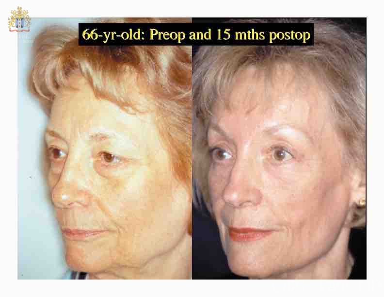 englishsurgeon.com. Photos show results of browlifts and cheeklifts