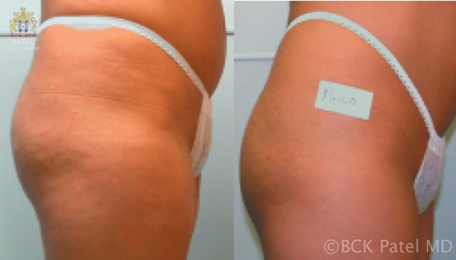 Results of Accent radiofrequency treatments to the thighs. BCK Patel Md