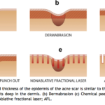 englishsurgeon.com. Diagrams showing the depths of acne scars and the response to different treatment modalities including lasers
