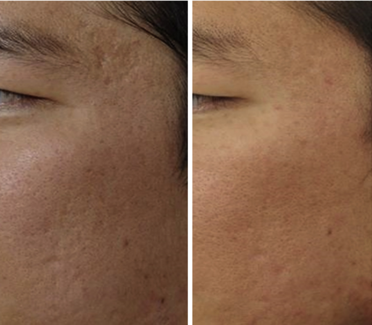 englishsurgeon.com. Photos showing the result of fotofacial laser treatment for CO2 scars