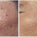 englishsurgeon.com. Photo showing the results of CO2 treatment of acne scars on the face