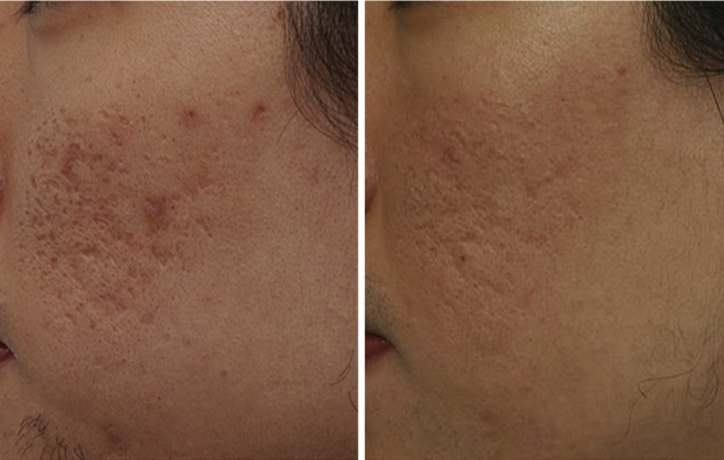 englishsurgeon.com. Photos showing results of Erbium treatment of the skin scars from acne