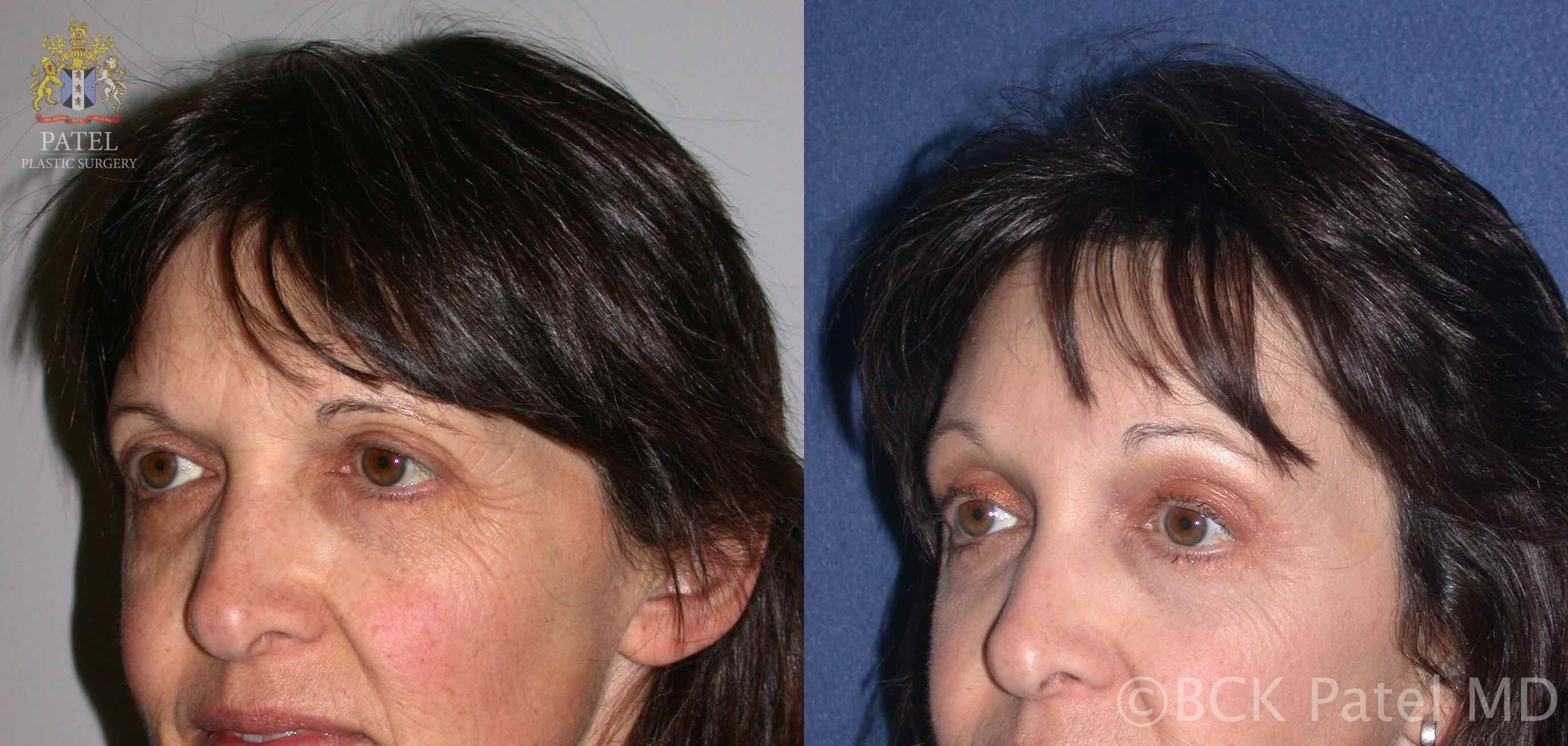 englishsurgeon.com. Photos show improvement in brow positions with endoscopic browlifts