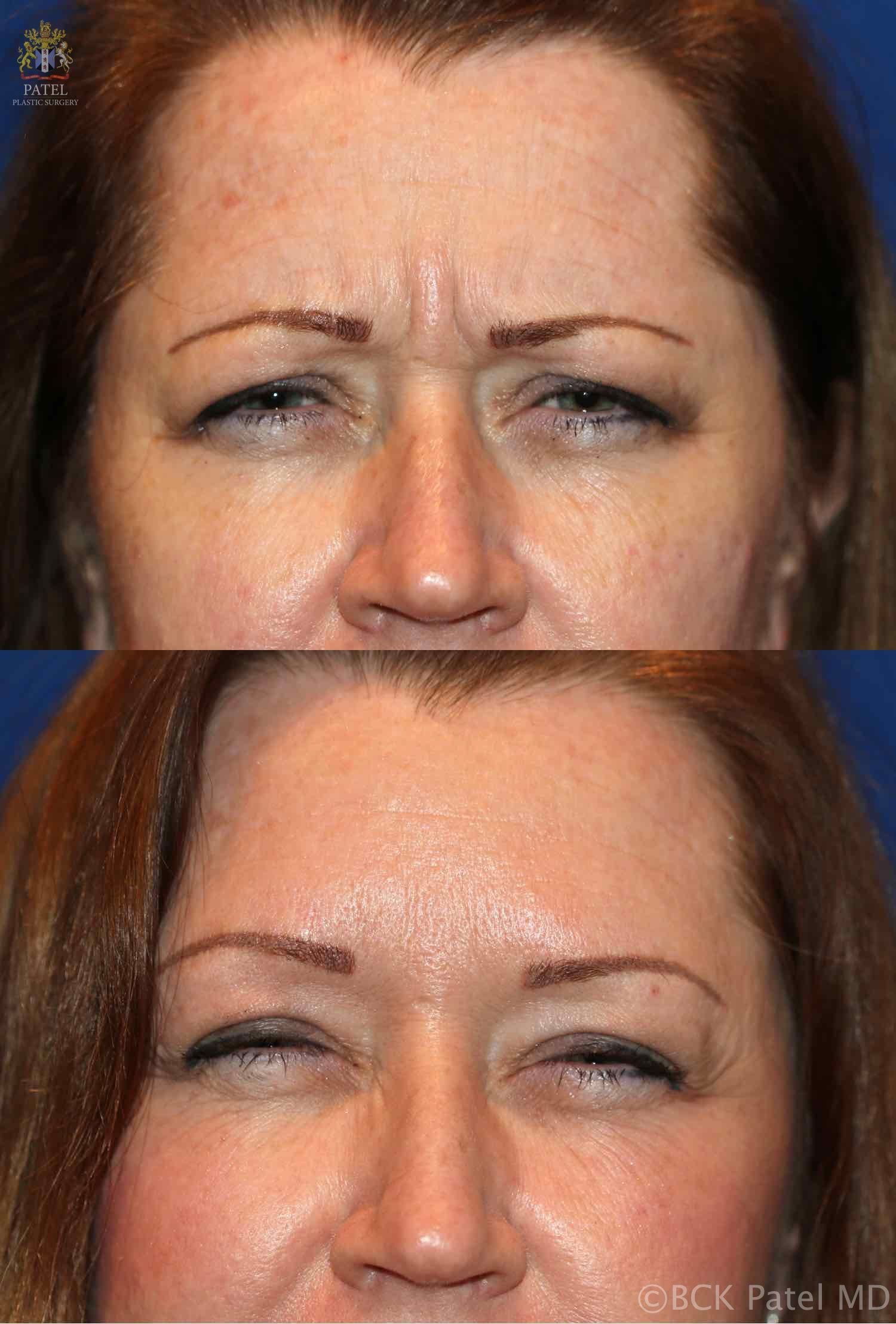 englishsurgeon.com. Photos showing the improvement of the frown lines