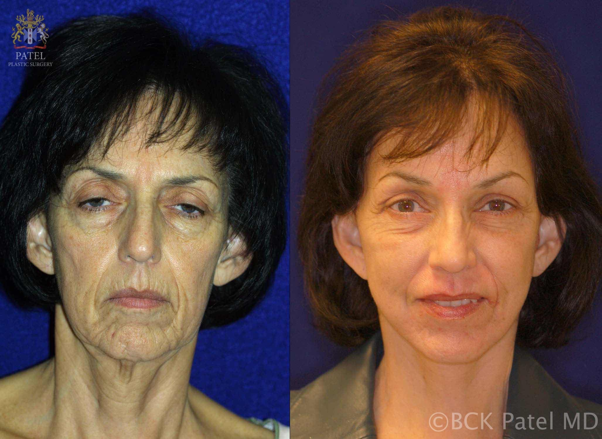 englishsurgeon.com. Photos show before-and-after results of browlifts and facelift