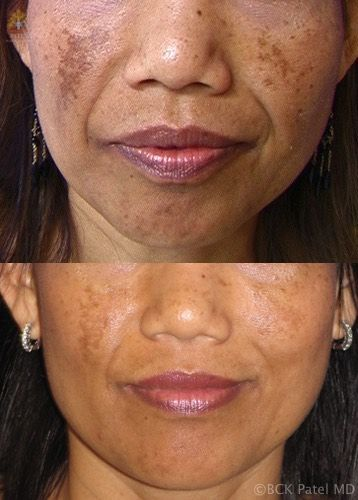 Results of face fotofacial treatments by Dr. BCK Patel MD, FRCS, Salt Lake City, St George