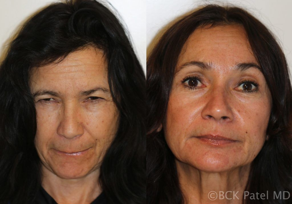englishsurgeon.com. Photo showing results of browlifts and blepharoplasty by Dr. BCK Patel MD, FRCS of Salt Lake City, Utah and St. George
