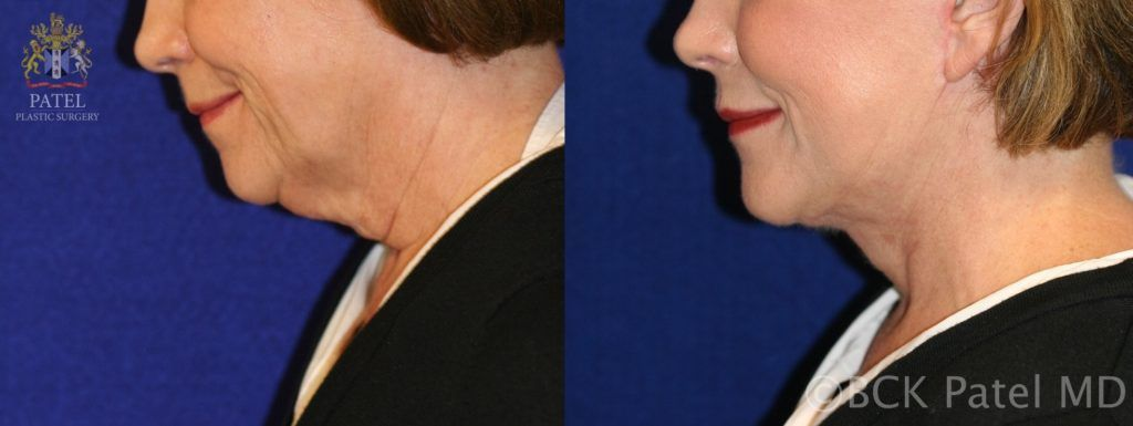 Photos show results of a facelift and necklift in a female with a tight jawline and neck. BCK Patel MD, FRCS