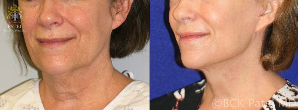 englishsurgeon.com. Photos show results of a facelift and necklift in a female with a tight jawline and neck. BCK Patel MD, FRCS