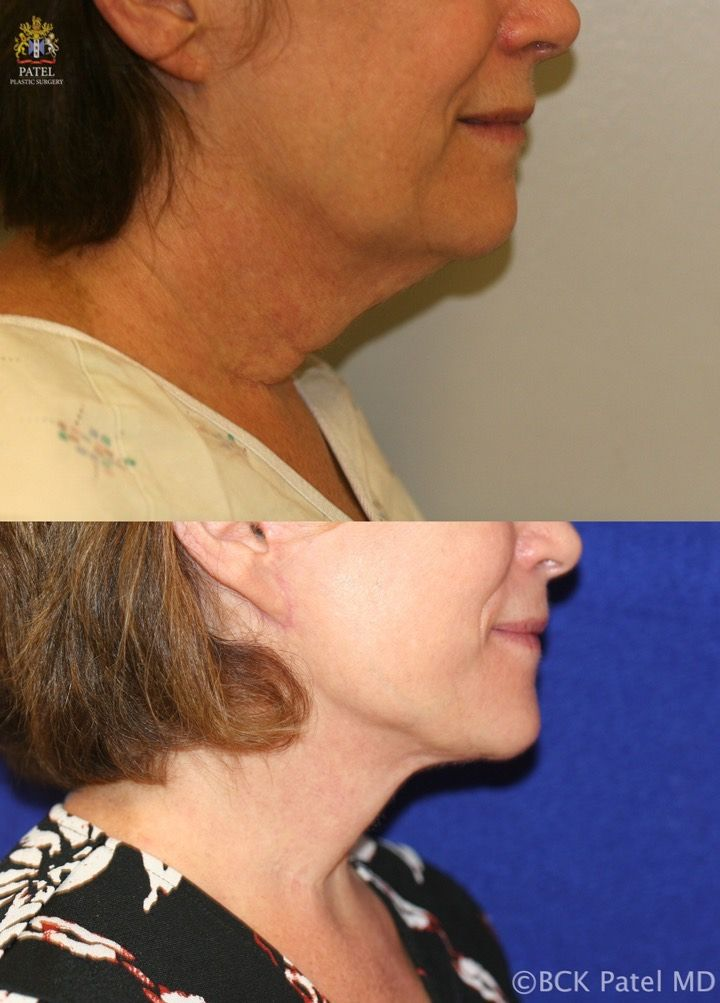 englishsurgeon.com. Photos showing the results of a lower facelift and necklift in a female BCK Patel MD, FRCS, Salt Lake City