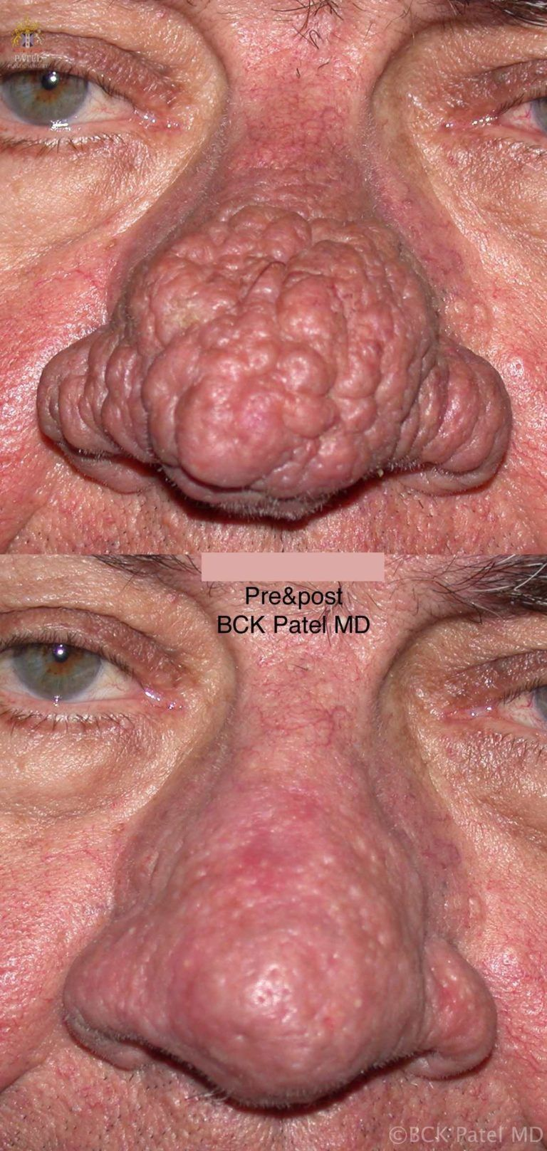 Treatment of severe rhinophyma with multiple lasers including the CO2 laser, fotofacial laser by Dr. BCK Patel of Salt Lake City