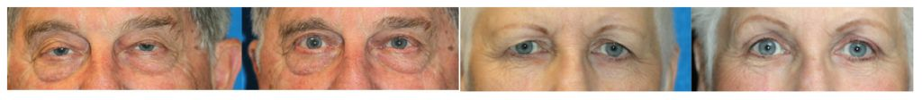 englishsurgeon.com Photos show the results of upper blepharoplasty and ptosis repair by Dr. BCK Patel MD, FRCS, Salt Lake City and St. George