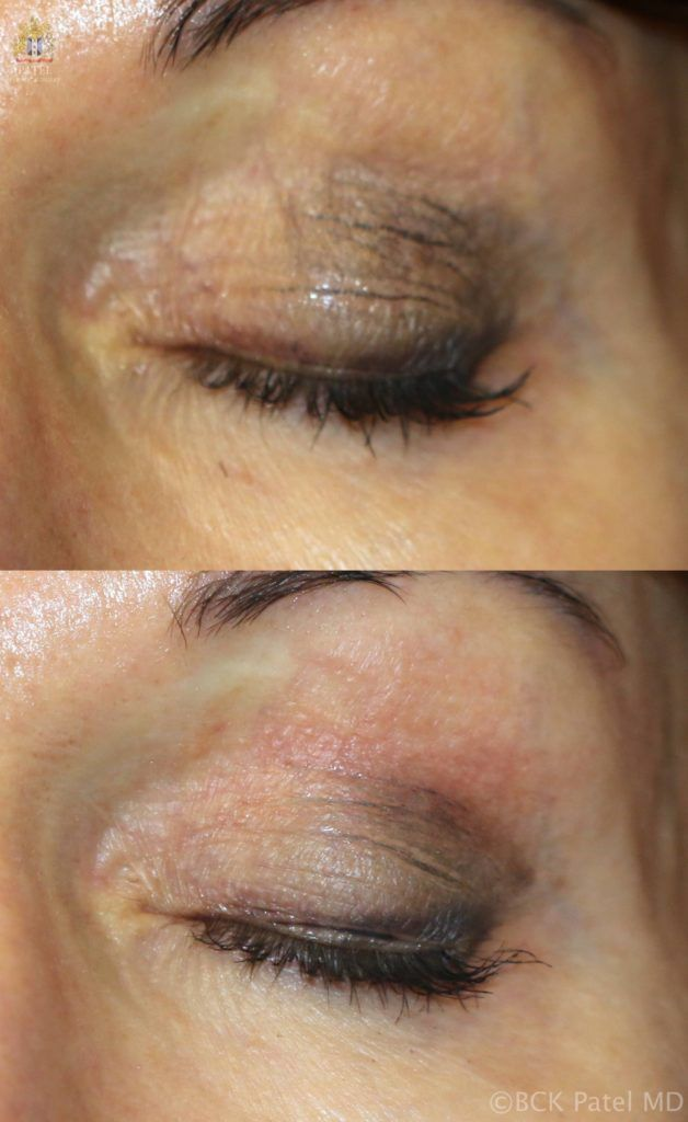 englishsurgeon.com. Photos show a nice improvement in the wrinkles and texture with CO2 laser treatment. BCK Patel MD, FRCS, Salt Lake City, St. George