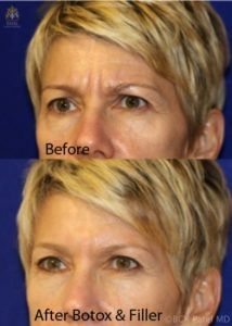 englishsurgeon.com. Photos showing the improvement in the frown lines