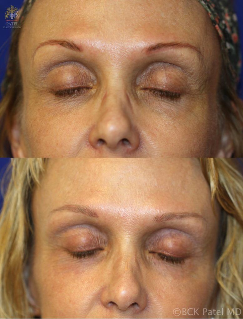 englishsurgeon.com. Photos show a nice improvement in the texture and wrinkles of the upper eyelids after use of the fractionated CO2 laser. BCK Patel MD, FRCS, Salt Lake City, St. George