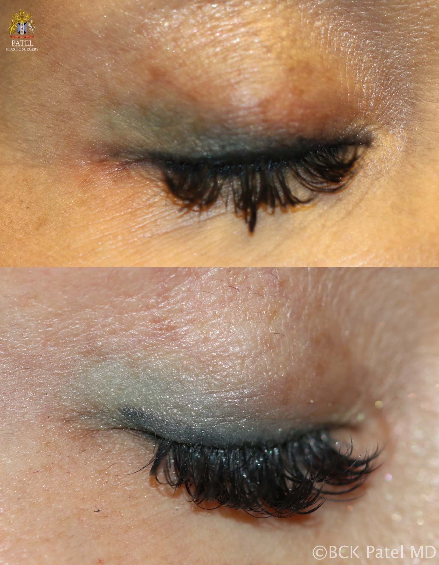 englishsurgeon.com. Photos showing an improvement in the leaked eyelid tattoo to improve the definition. BCK Patel MD, FRCS, Salt Lake City, St George