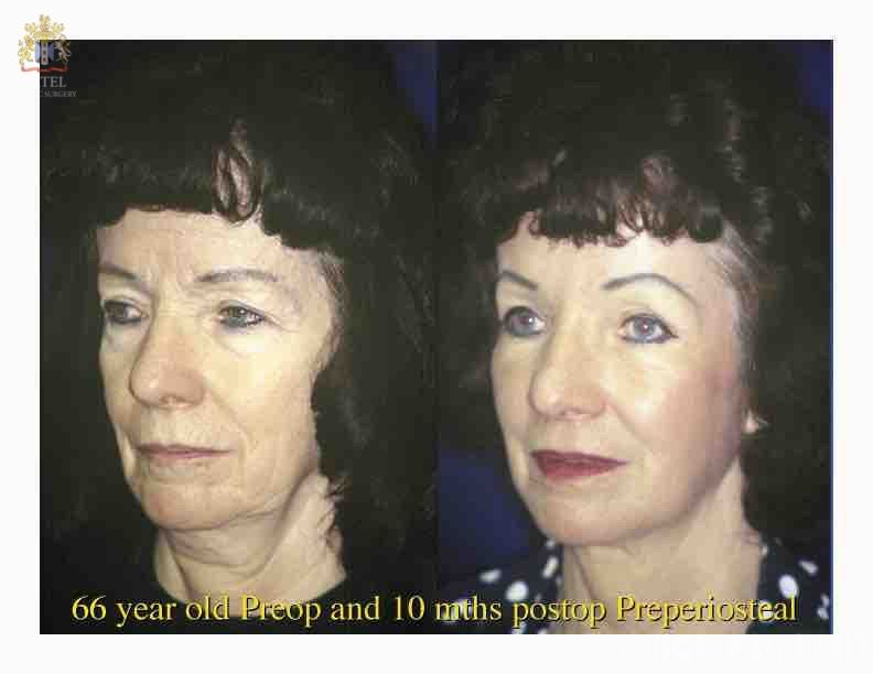 englishsurgeon.com. Photos show results of bilateral browlifts and cheek lifts