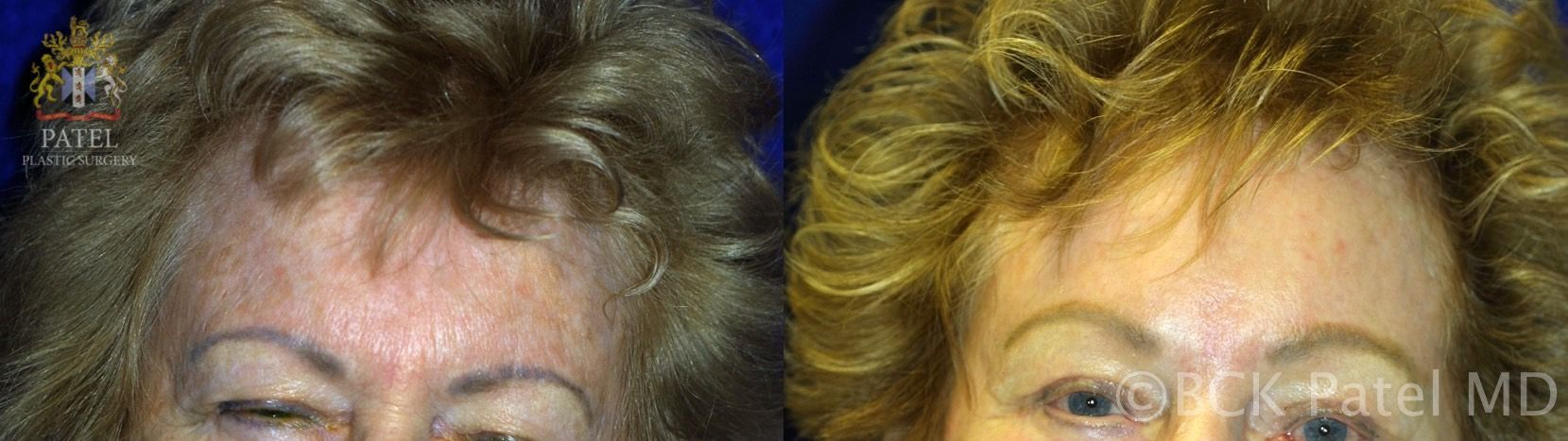 englishsurgeon.com. Photos show results of fractionated CO2 laser on the face. BCK Patel MD; Salt Lake City