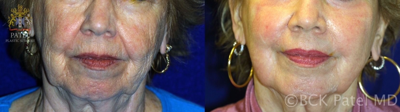 englishsurgeon.com. Photos show results of fractionated CO2 laser on the face. BCK Patel MD