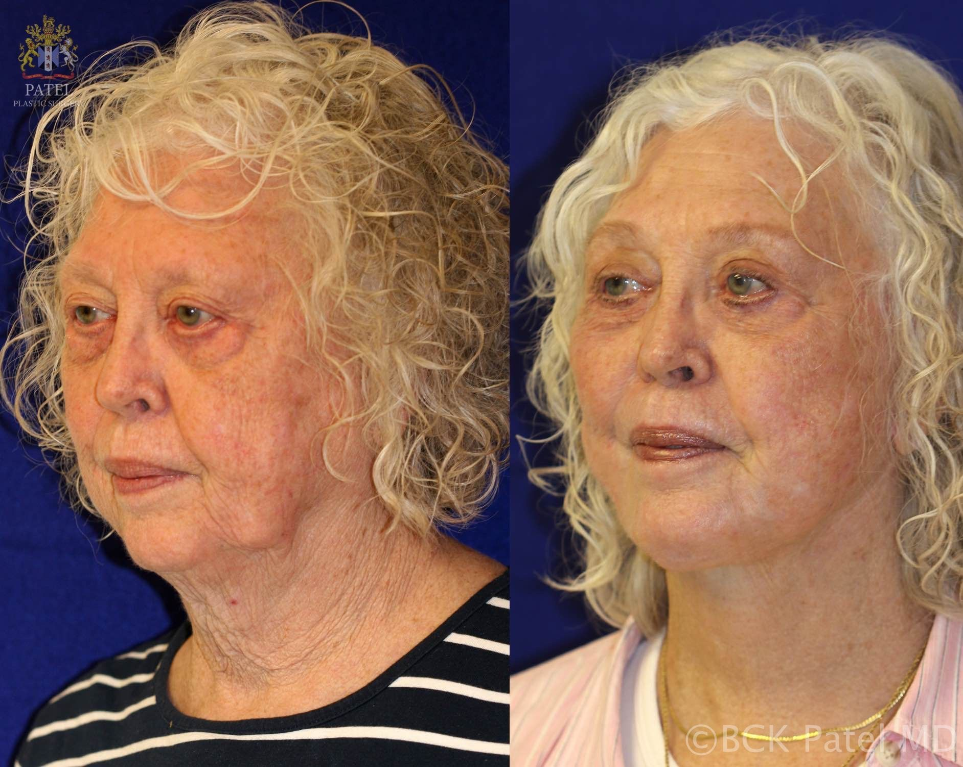 englishsurgeon.com These photos show the improvement possible with a full facelift or rhytidectomy together with fat grafts and the use of the CO2 laser and also augmentation of the chin and treatment of the lip lines and long upper lip. By BCK Patel MD, FRCS, Salt Lake City, St. George, London