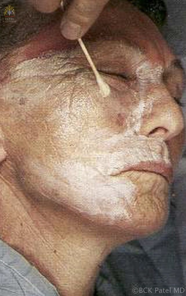 englishsurgeon.com. Technique of application of deep chemical peel to the face by Dr. BCK Patel MD, FRCS, Salt Lake City, London, St. George