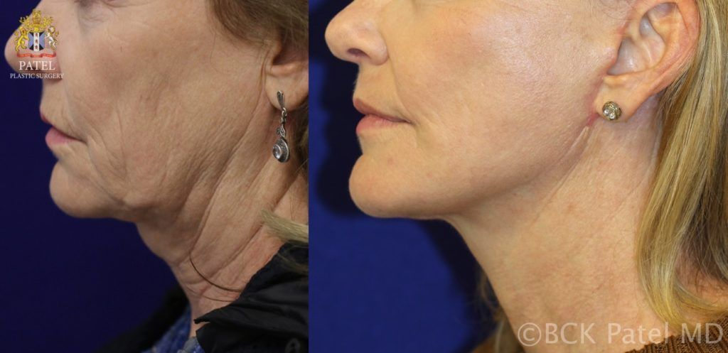 "englishsurgeon.com. Photos show lower facelift and necklift with rotation of the ""witch's chin"" BCK Patel MD; Salt Lake City, Utah, St. George"