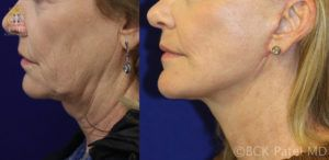 "englishsurgeon.com. Photos show lower facelift and necklift with rotation of the ""witch's chin"" BCK Patel MD"