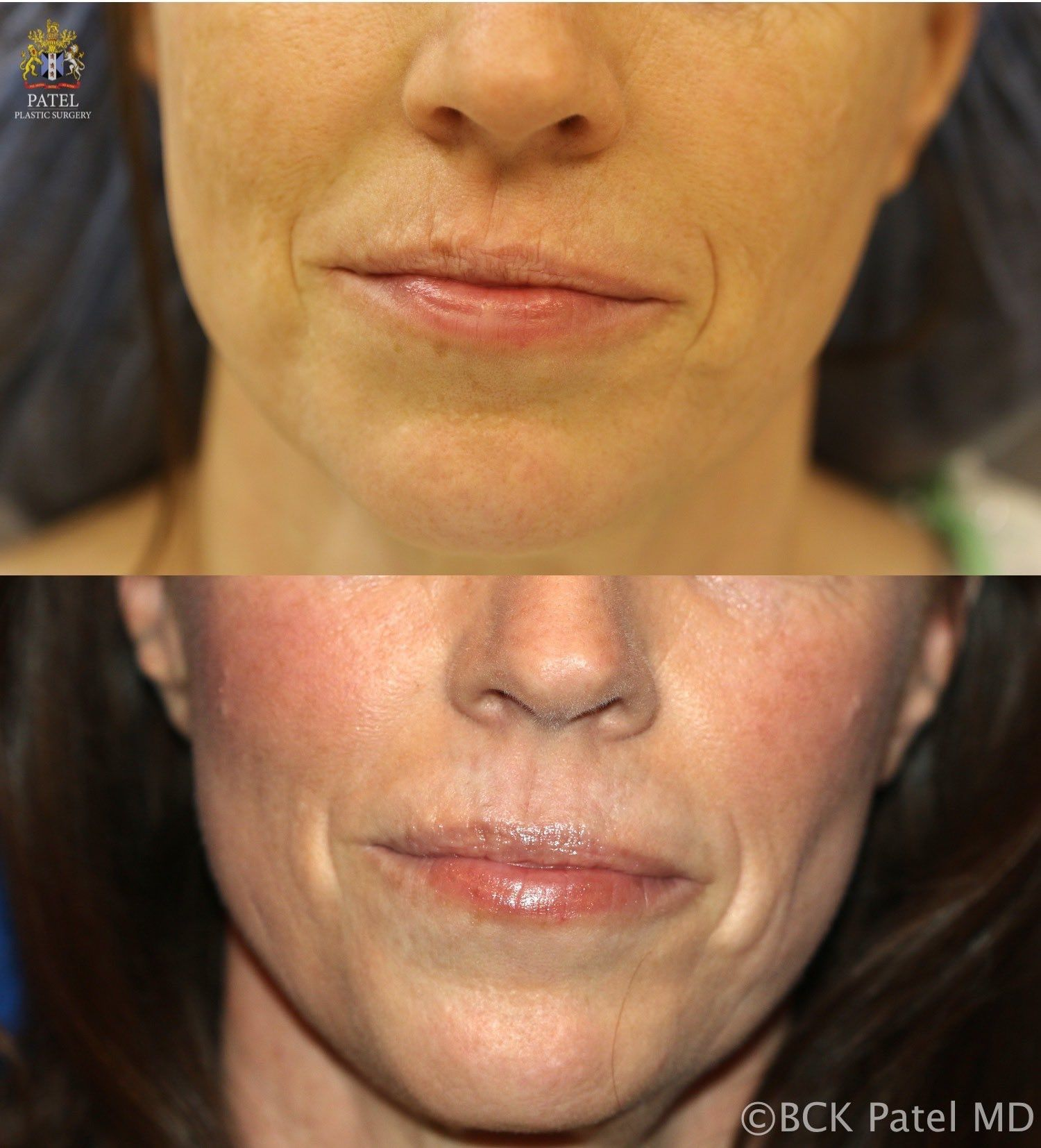 englishsurgeon.com. Nice results with improvement of lip andmouth smoker's lines with the use of the CO2 laser by Dr. BCK Patel MD, FRCS, Salt Lake City, London, St George