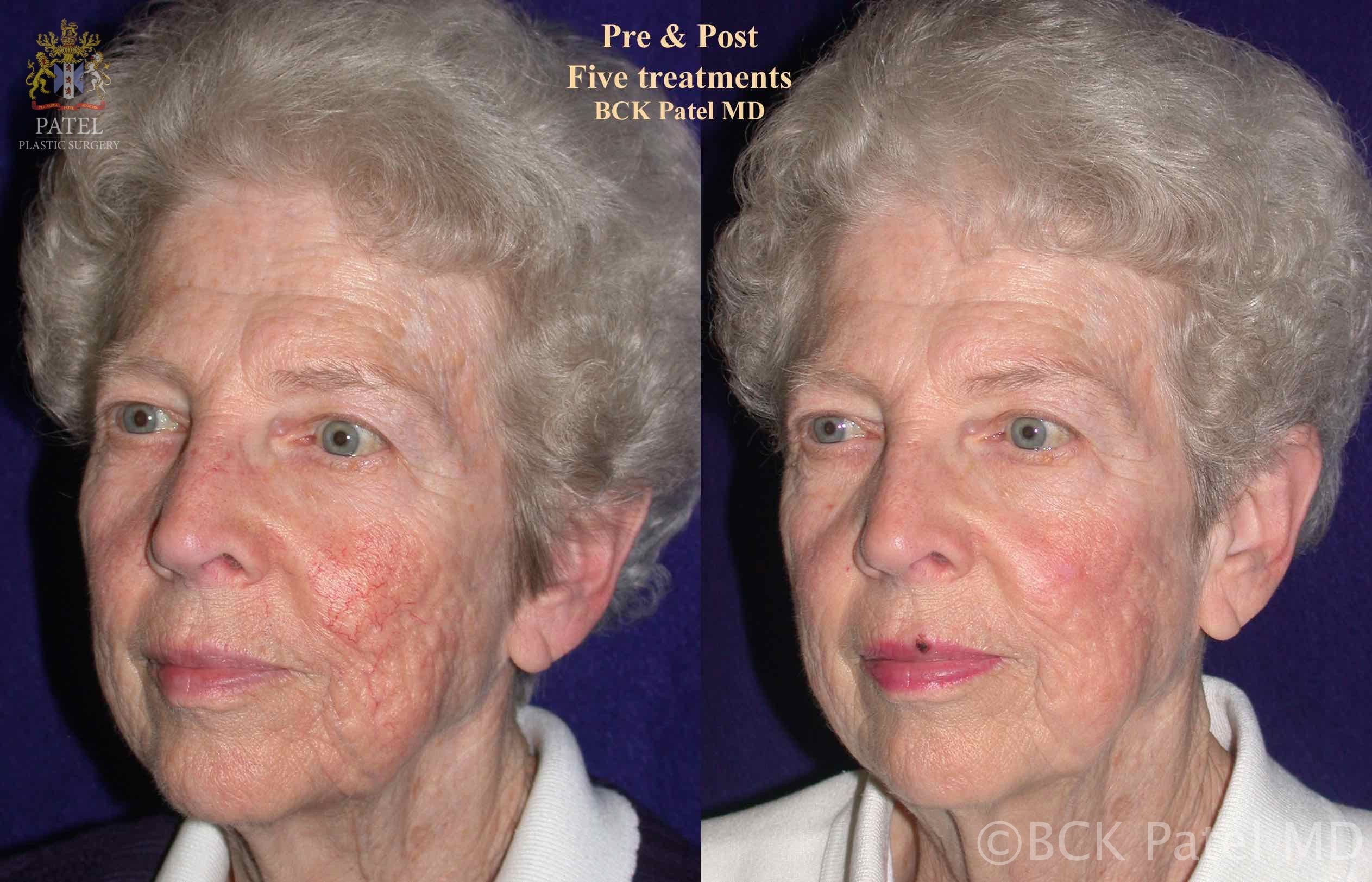 Results of facial fotofacial treatments by Dr. BCK Patel MD, FRCS, Salt Lake City, St George