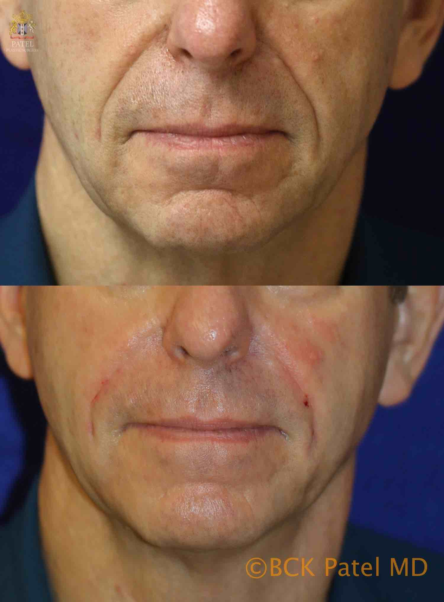 englishsurgeon.com. Photos showing improvement in the nasolabial folds and cheeks. BCK Patel MD, FRCS