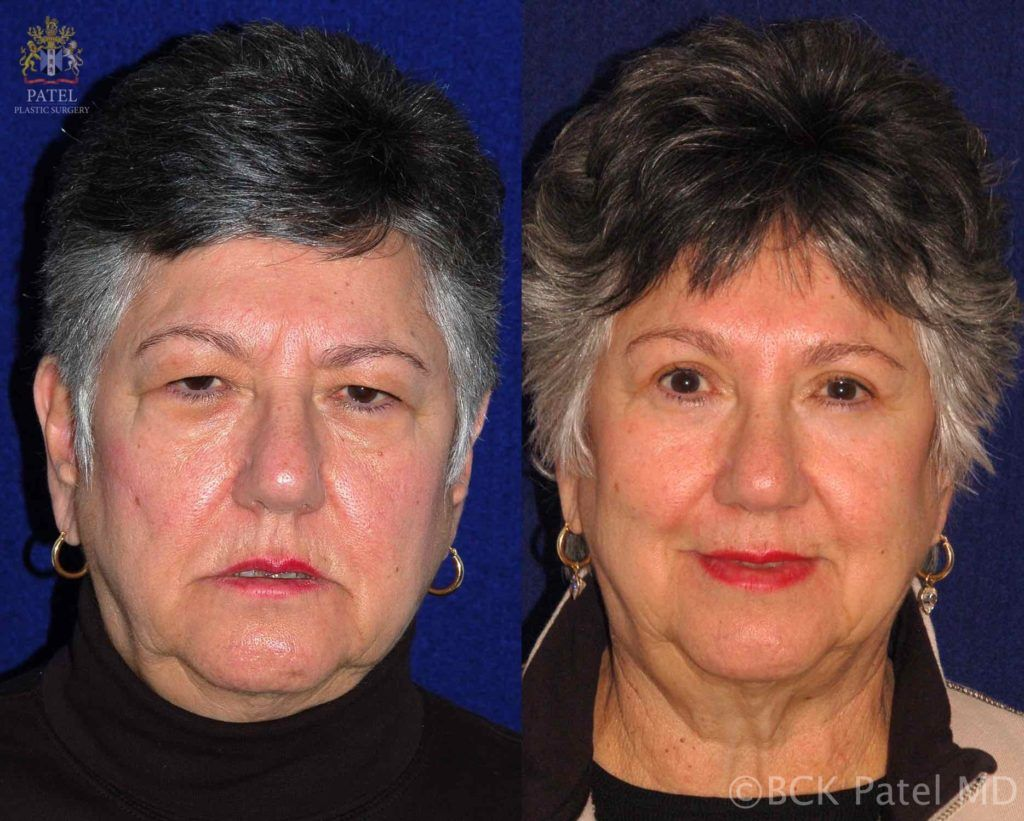 englishsurgeon.com. Photos showing results of endoscopic brow lifts