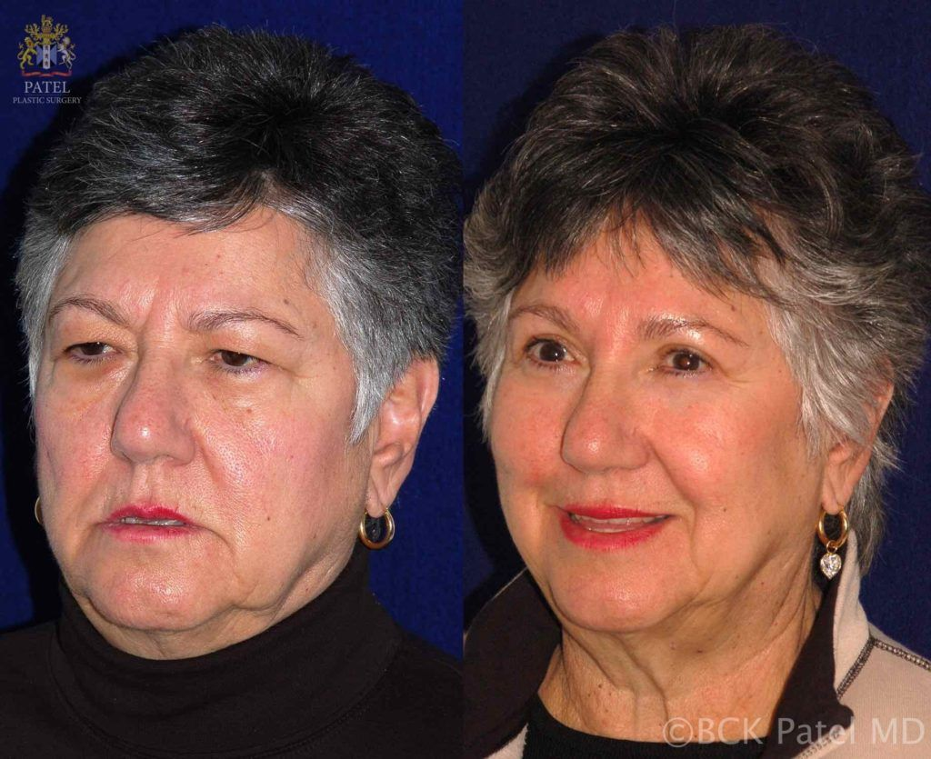 englishsurgeon.com. Photos showing results of endoscopic browlifts
