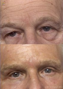 englishsurgeon.com. Photos showing the results of an upper and lower blepharoplasty and CO2 laser to the skin BCK Patel MD Salt Lake City