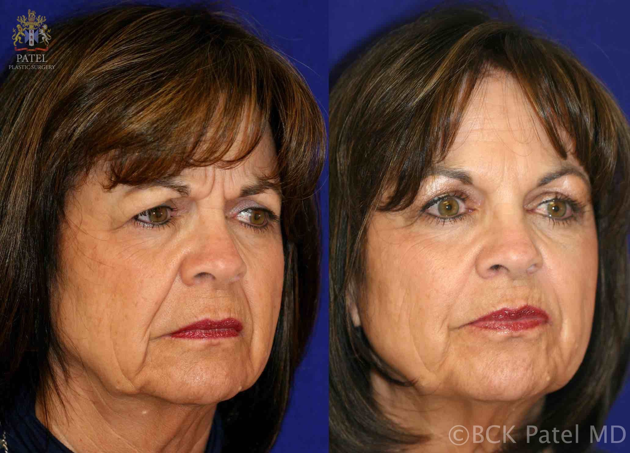 englishsurgeon.com. Photos showing the improvement in cheeks and nasolabial folds with fillers. BCK Patel MD, FRCS