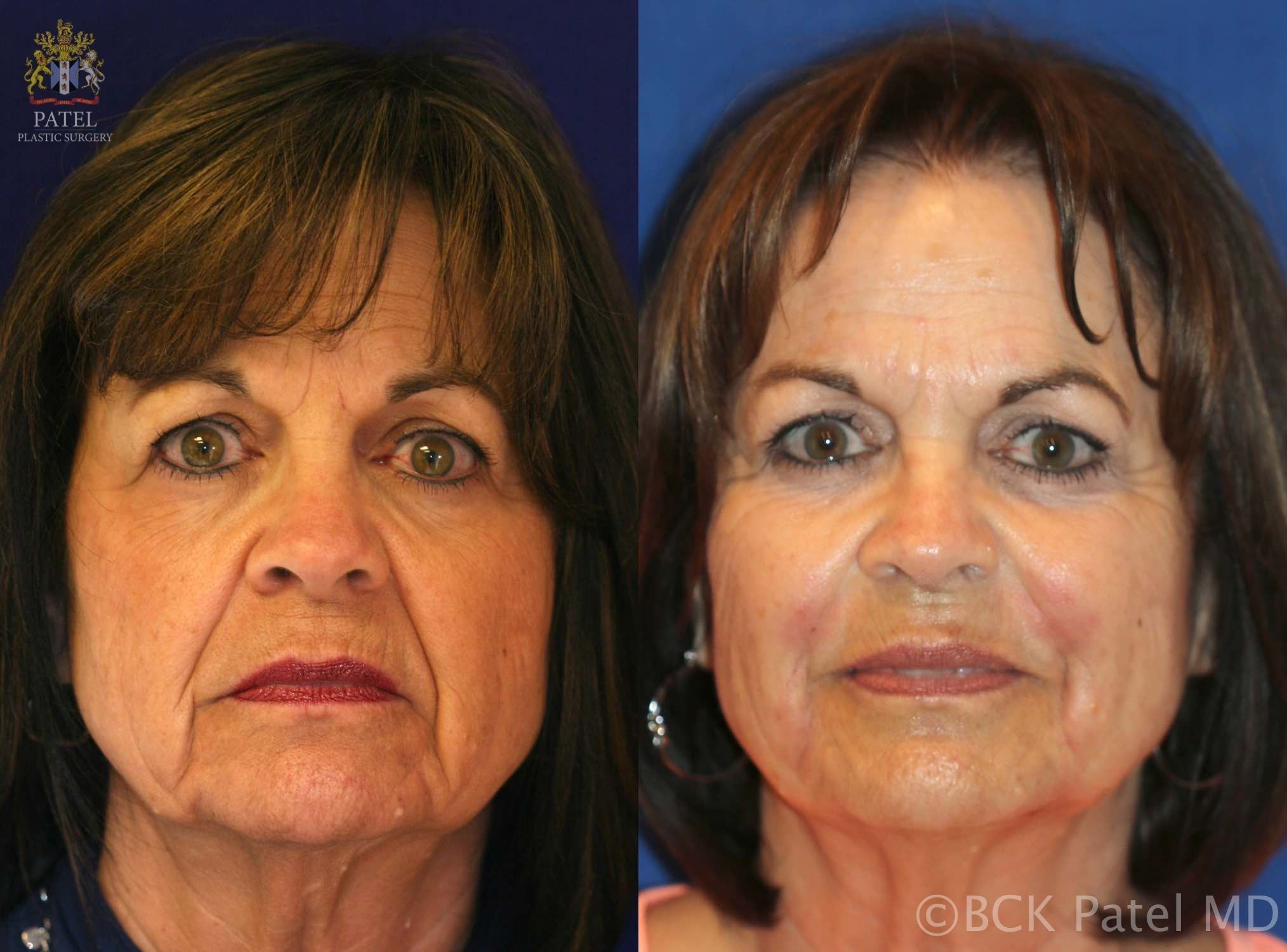 englishsurgeon.com. Photos showing the improvement in frown lines and nasolabail folds. BCK Patel MD