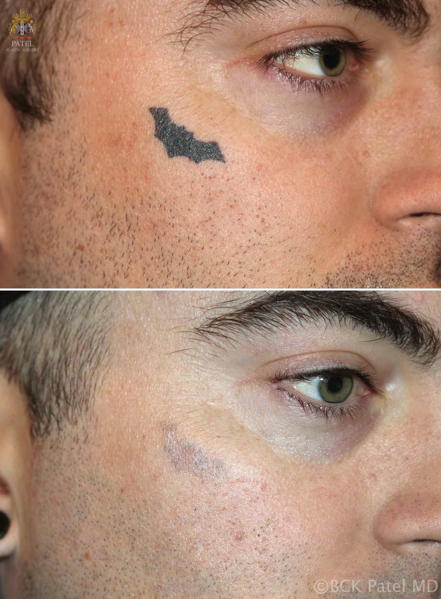 englishsurgeon.com. Photos showing removal of face dark tattoo with the laser. BCK Patel MD, FRCS, Salt Lake City, Utah, St. George