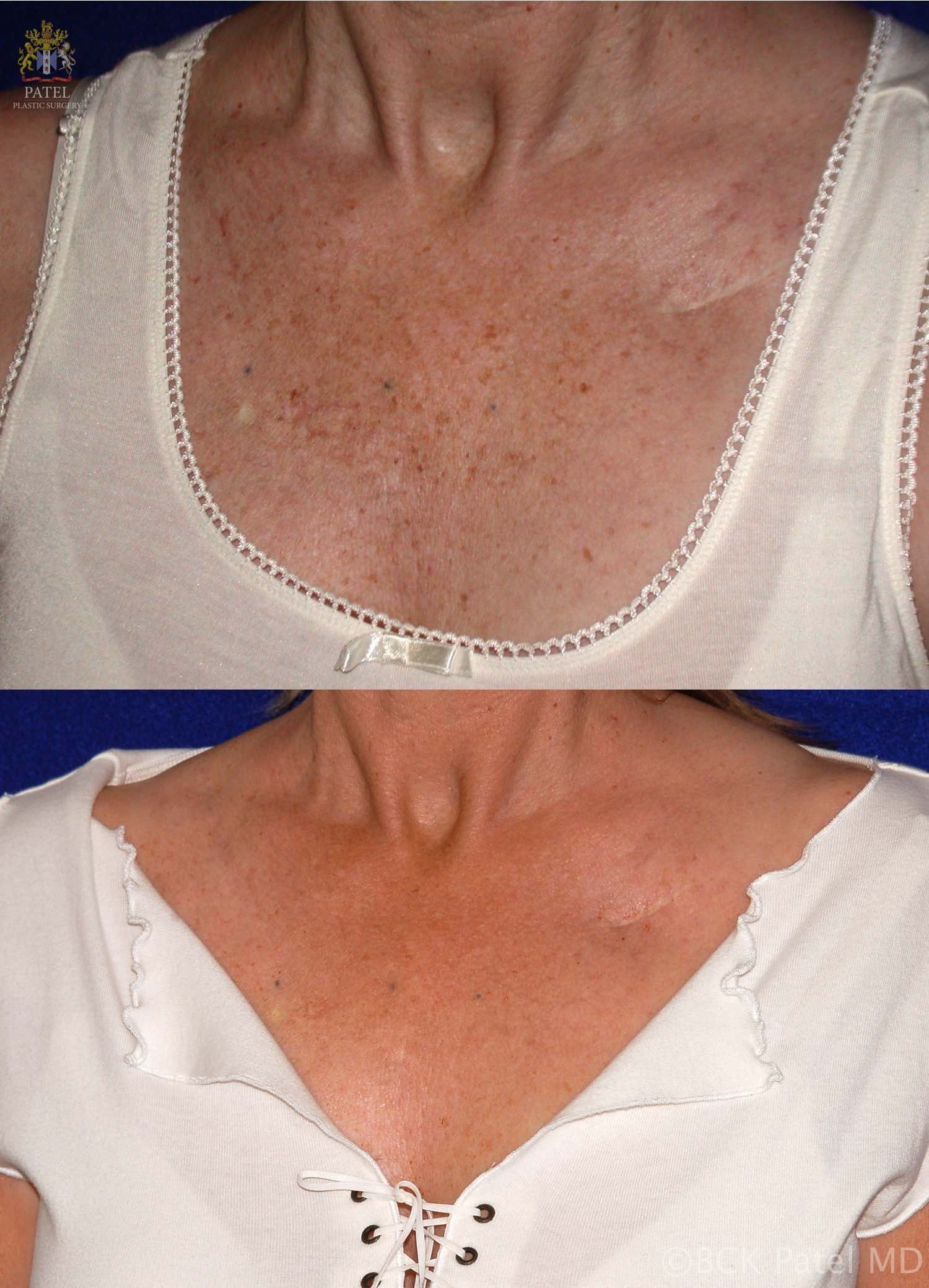 englishsurgeon.com Results of neck fotofacial treatments by Dr. BCK Patel MD, FRCS, Salt Lake City, St George